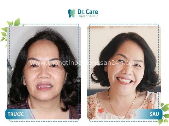 Lời khuyên giúp bạn sống thoải mái khi mất răng toàn hàm - Ảnh 2.
