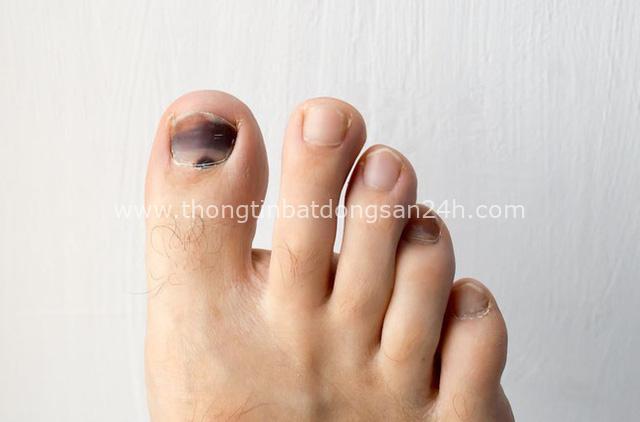 Móng chân chuyển màu đen có thể là nốt ruồi lành tính nhưng nhiều khi cũng là dấu hiệu của các bệnh, bao gồm cả ung thư - Ảnh 1.